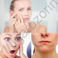 Советы по удалению угрей с кожи.