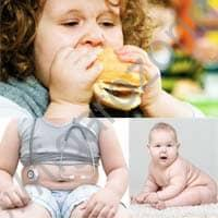 Причины детского ожирения.